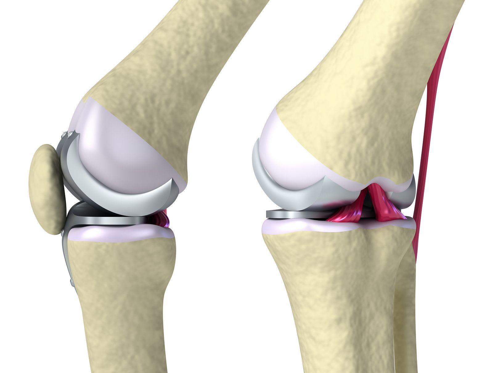 Fisioterapia Después De Cirugía De Prótesis De Rodilla