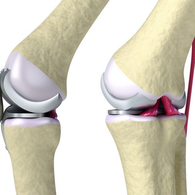 Fisioterapia para después de una cirugía de prótesis de rodilla (Bigstock)