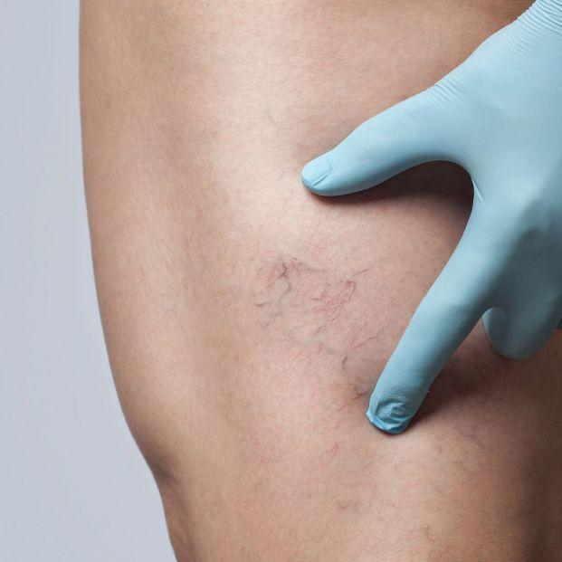 Un estudio verifica que los vasos sanguíneos de las mujeres envejecen antes que los de ellos