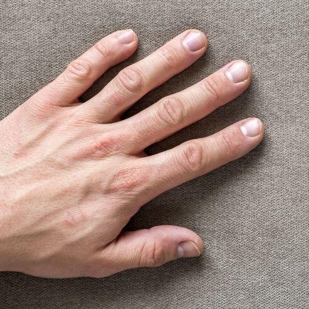 Capilaroscopia para estudiar la microcirculación en los dedos de las manos