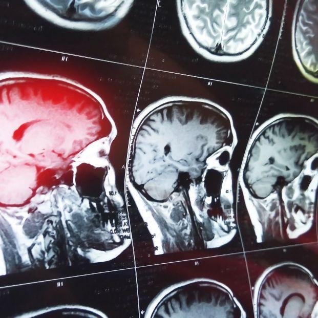 Las técnicas de neuroimagen son una herramienta esencial en el diagnóstico de enfermedades neurodegenerativas