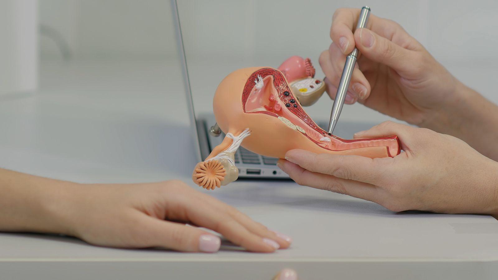 Menopausia los síntomas y el desarrollo de fibromas