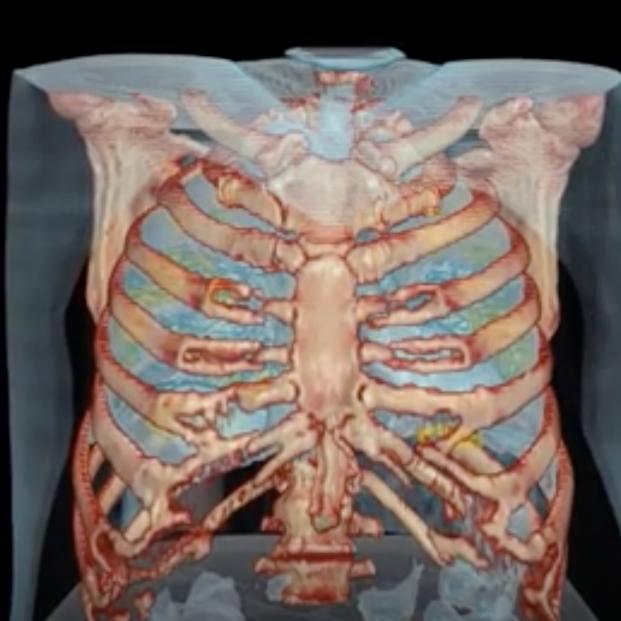 El impactante vídeo que muestra cómo ataca el coronavirus a los pulmones