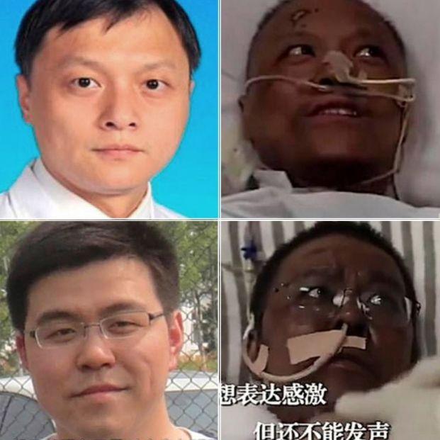 Dos médicos chinos despiertan con la piel de color negro tras recuperarse del coronavirus