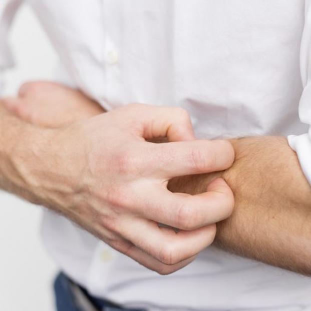 Descubiertos cinco grandes tipos de lesiones cutáneas en pacientes con coronavirus