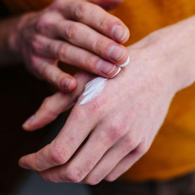 Dermatitis atópica, psoriasis, rosácea y vitiligo: enfermedades de la piel más comunes