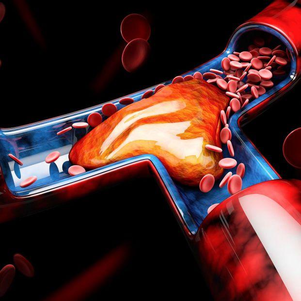 Trombos en pulmones y piernas, una posible complicación del coronavirus