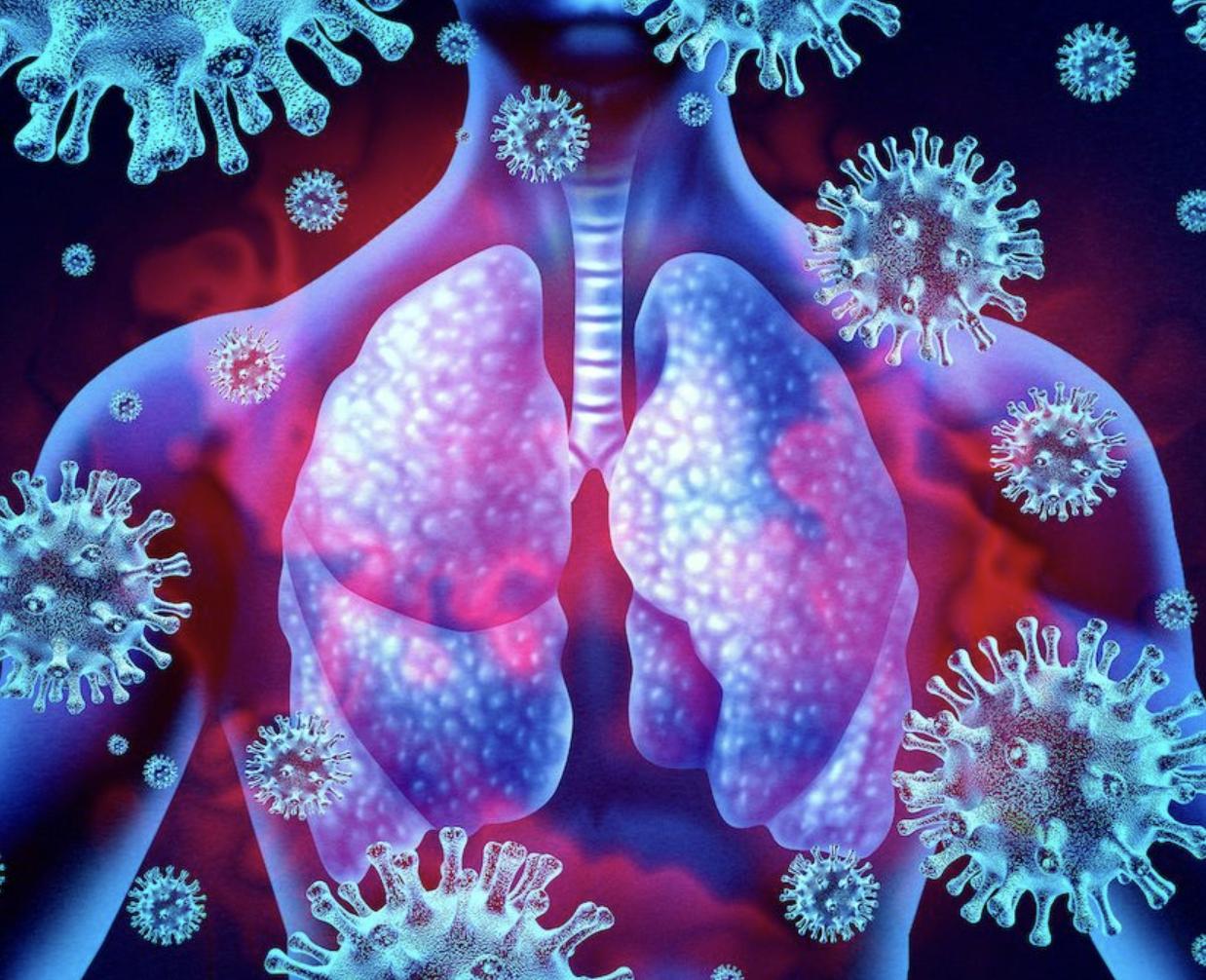 El Covid-19 es un virus, no una bacteria