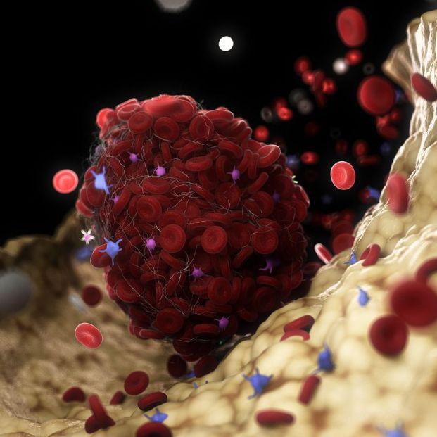 """Los neumólogos alertan de una """"oleada de trombos en piernas y pulmones"""" tras el COVID-19"""