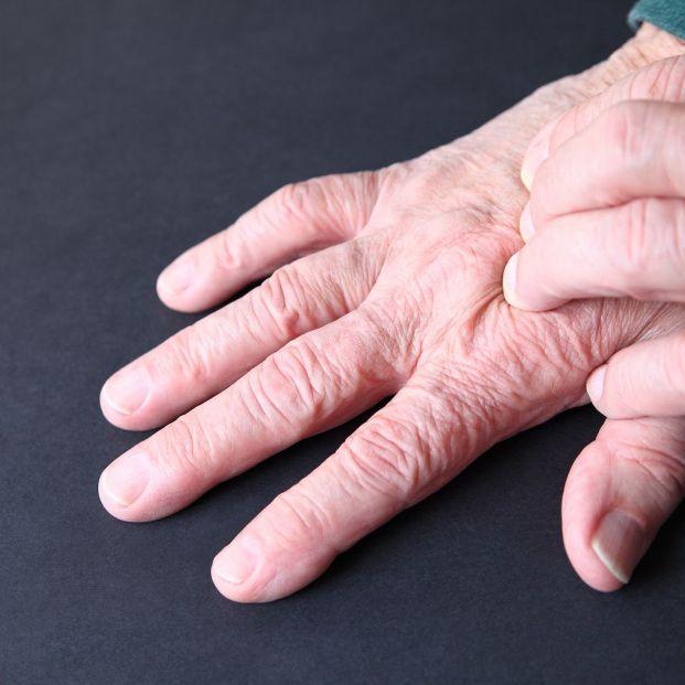 Dermatitis: síntomas