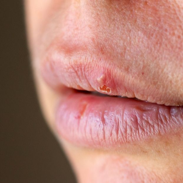 bigstock Herpes On The Lip Close Up Mac 270625021