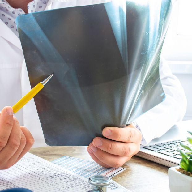 Causas y tratamiento de la osteoporosis