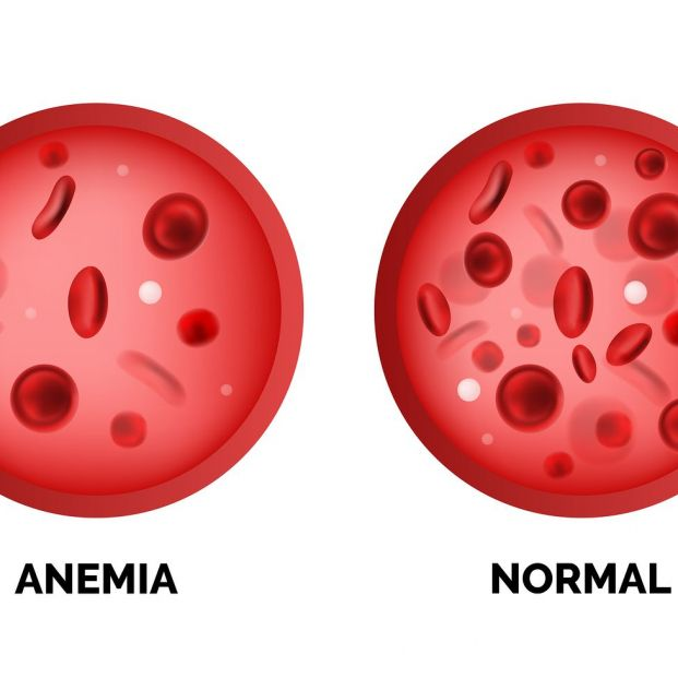 bigstock Infographic Image Of Anemia Is 275558515