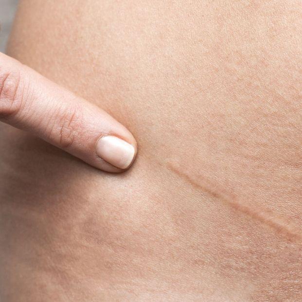 Cómo se crea una cicatriz
