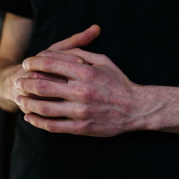 Psoriasis, la enfermedad de la piel