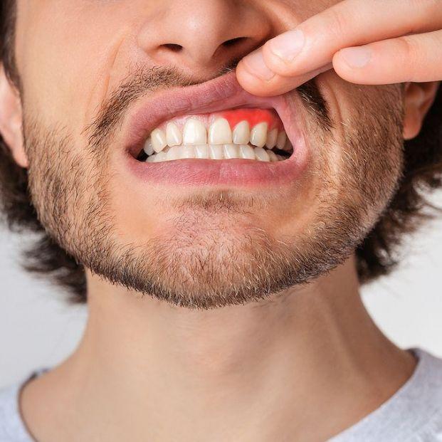 ¿Qué es la gingivitis?