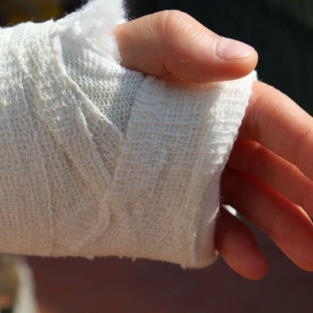 Consejos para evitar lesiones traumatológicas, más propensas en verano