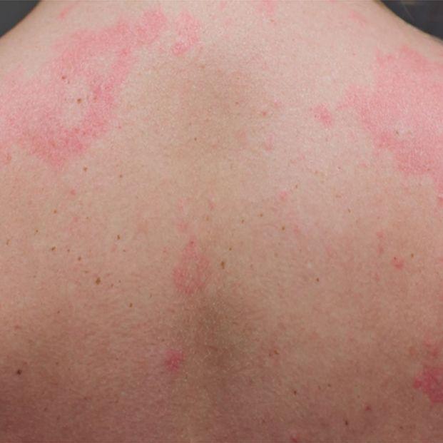 Coronavirus: las cinco manifestaciones del Covid en la piel