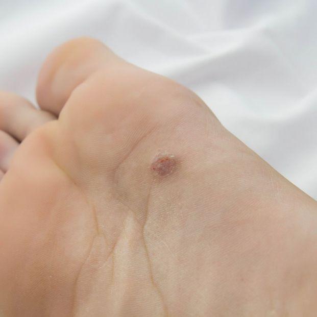 que son papilomas en la piel cum se tratează papiloamele pe mameloane