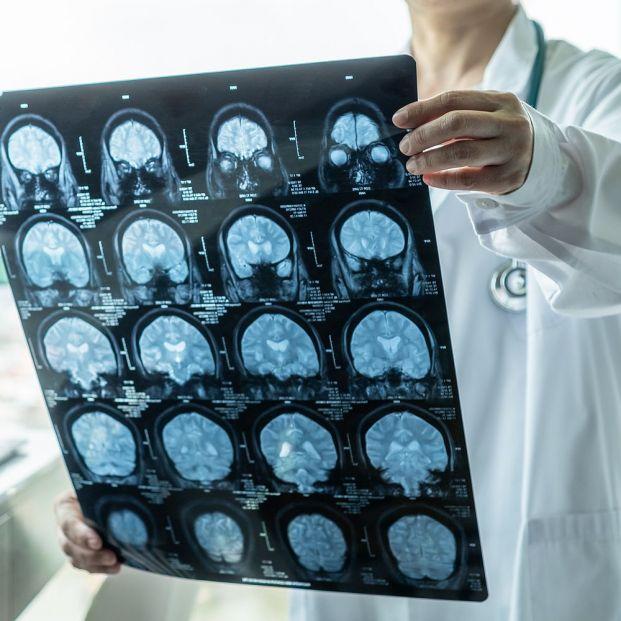El COVID-19 causa lesiones neurológicas en uno de cada siete infectados