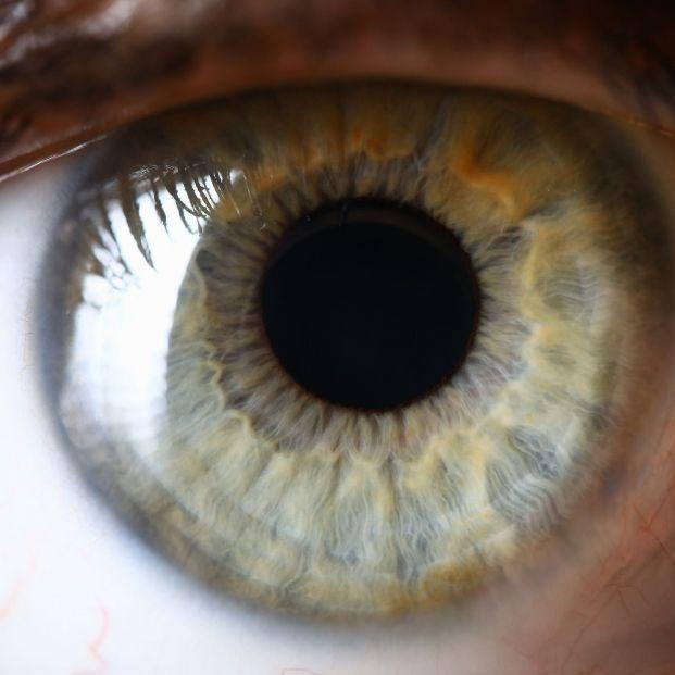 Esa mancha en el ojo puede ser una peca