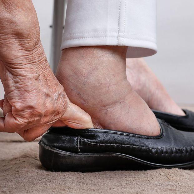 Relacionan la Fibromialgia con problemas en los pies: Juanetes, deformidades o pérdida de equilibrio