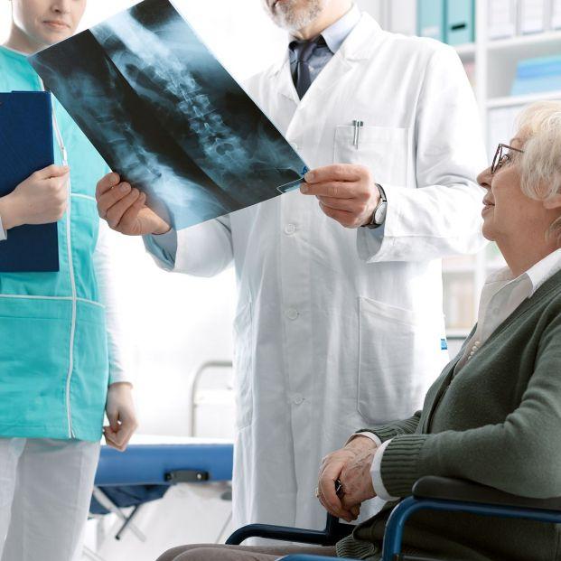 Osteoporosis: Los expertos advierten que un hueso roto conduce a otro