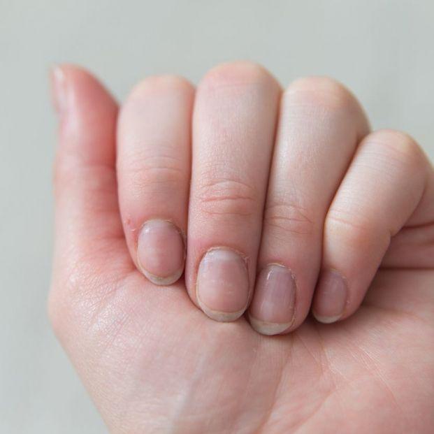 Por qué se rompen las uñas