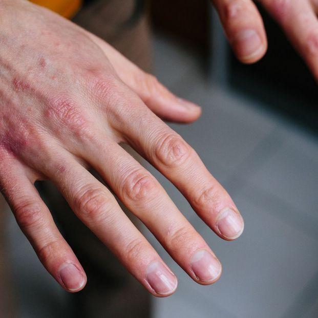 Remedios para las manos secas que encontramos en la cocina