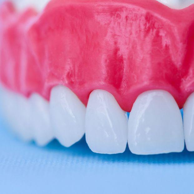 Periodontitis: ¡presta atención a tus encías!