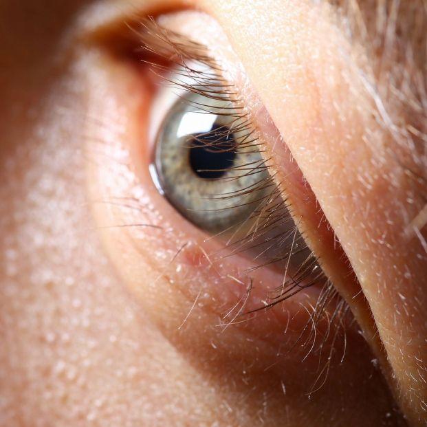 Tus párpados caídos con el paso de los años tienen solución: puede que necesites una blefaroplastia