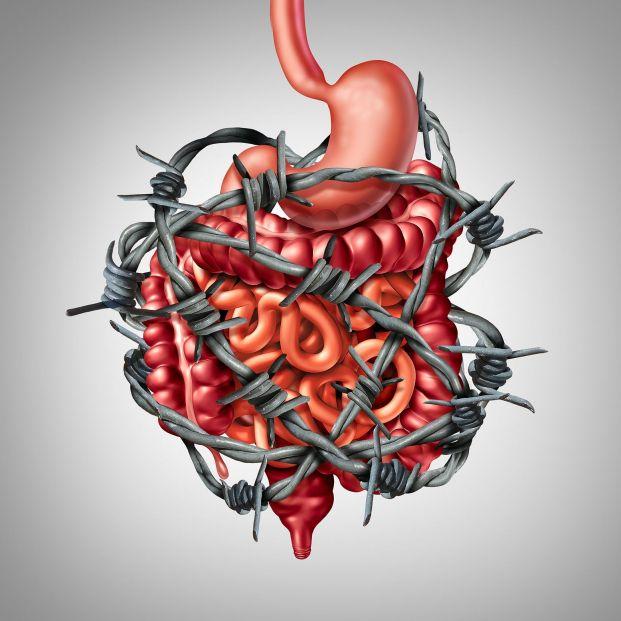 6 consejos para reducir el Síndrome del Intestino Irritable