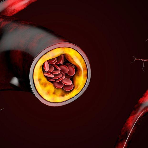 Reduce el colesterol de manera natural