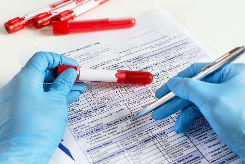 Cómo interpretar un análisis de sangre