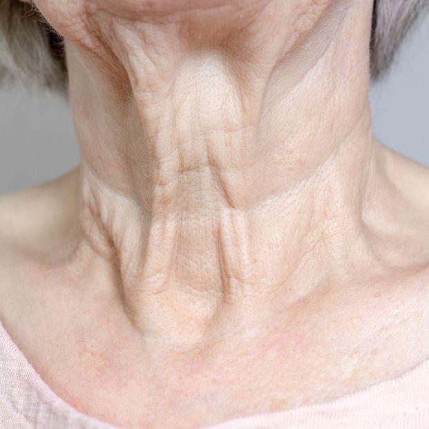 ¿Qué aspectos de la piel nos envejecen más? Foto: bigstock