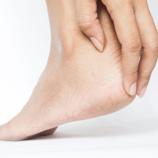 Cómo evitar las rozaduras de los zapatos nuevos