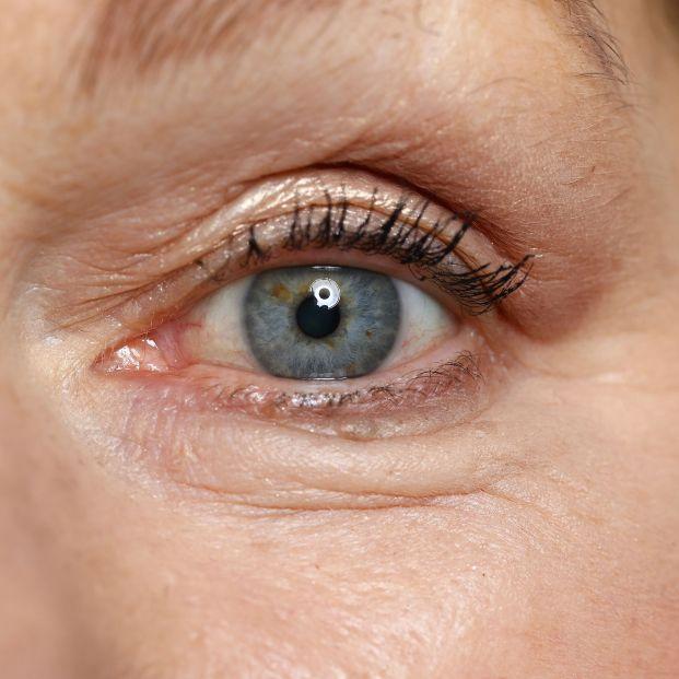 Consejos para reducir las bolsas de los ojos Foto: bigsotck