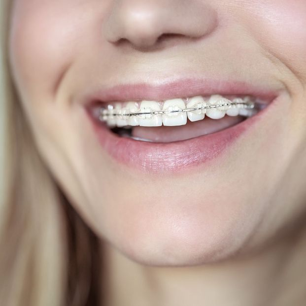 ¿Qué es la ortodoncia estética? Foto: bigstock