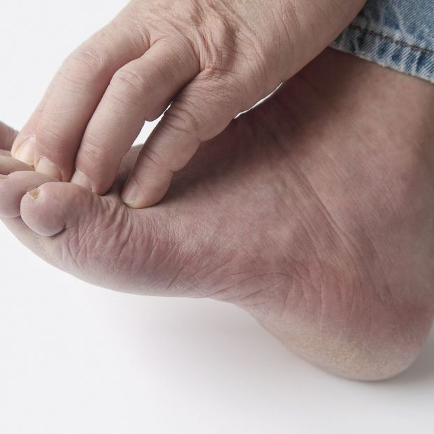 ¡Cuidado! El frío fomenta la aparición de los molestos sabañones en los pies de los mayores (Foto: BigStock)
