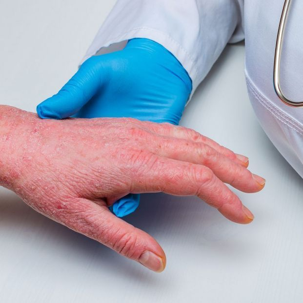 bigstock doctor in gloves examines the 313279966 1 621x621