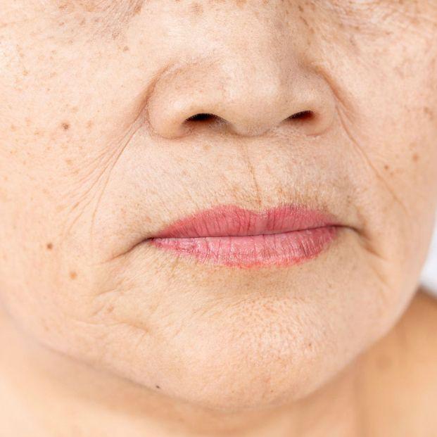 Hay algún método eficaz para eliminar las arrugas nasolabiales (Bigstock)