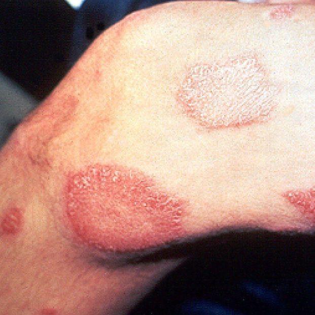 ¿Qué sabemos de la lepra?