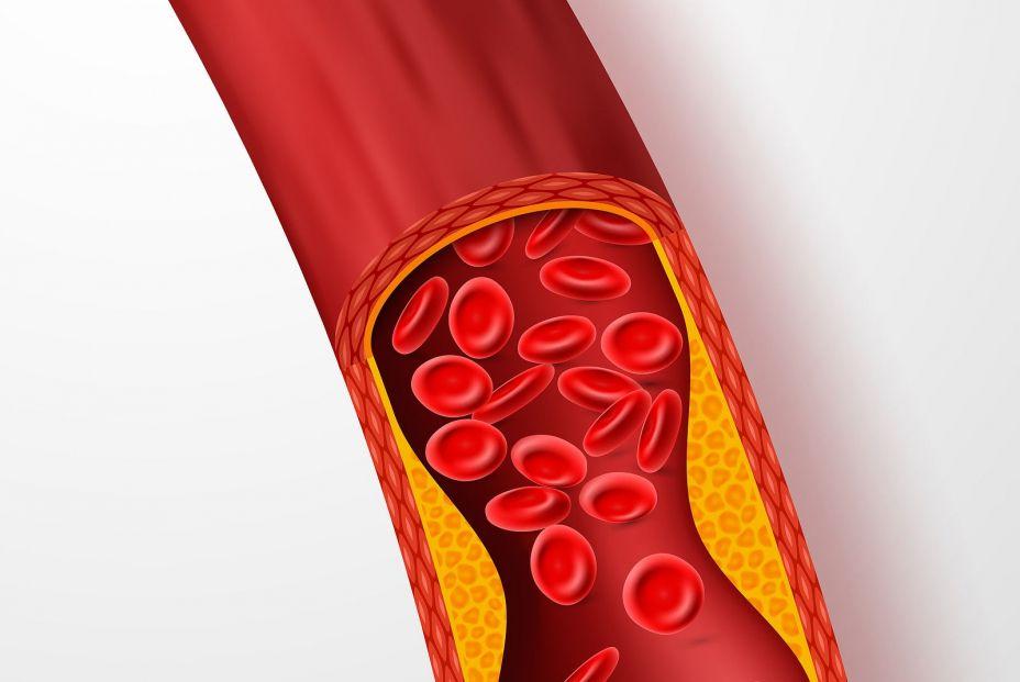 Vigila los lípidos. Estas son las consecuencias de su aumento en nuestro organismo. Foto: Bigstock