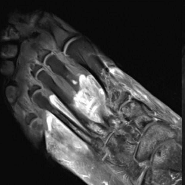 Artritis, gangrena, coágulos, hematomas, nervios lesionados... síntomas raros del covid persistente