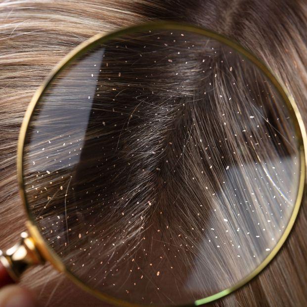 La piel, el pelo y las uñas, claves para detectar más de mil enfermedades