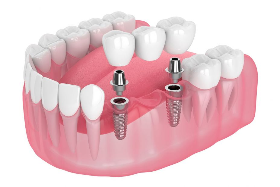 Ante la pérdida dentaria: ¿puente bucal o implante?. Bigstock