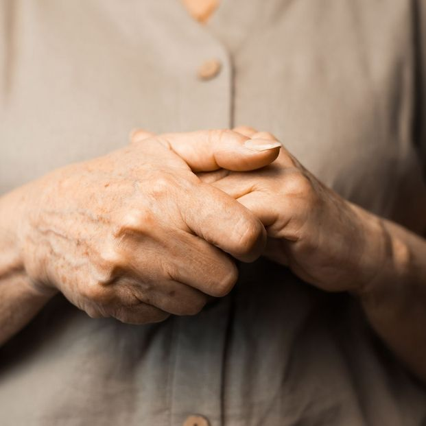 Remedios caseros para disimular o eliminar las manchas en las manos