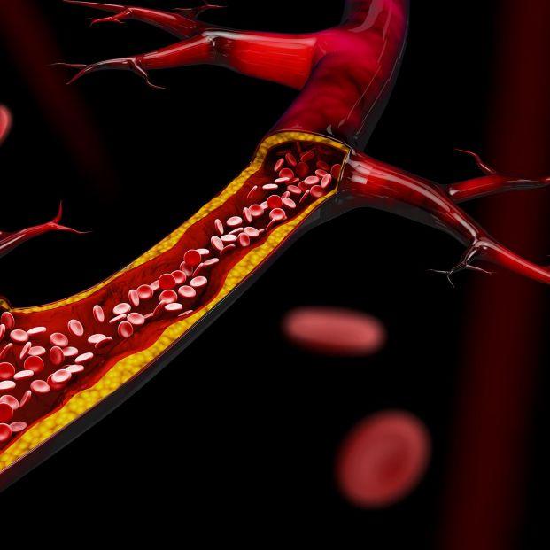Qué deben saber los mayores sobre el consumo de estatina para disminuir el colesterol