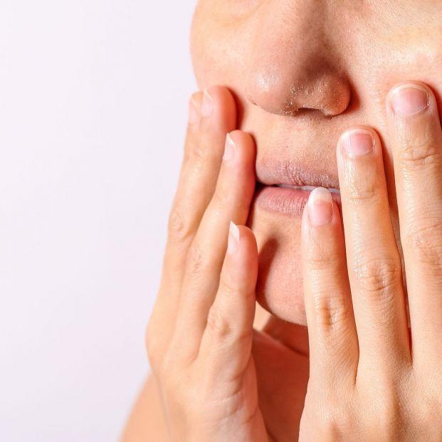 Cuidados para evitar sequedad y grietas en labios (bigstock)