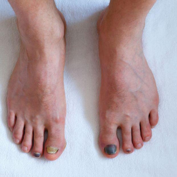 hongos en uñas de los pies
